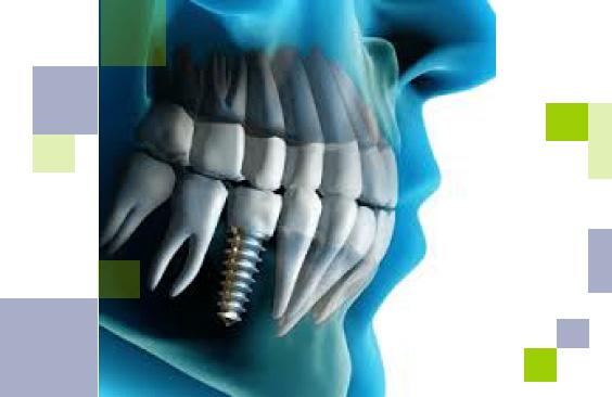 implantes_564x366